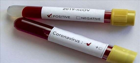 ساخت کیت تشخیص ویروس کرونا توسط فناور پارک علم و فناوری لرستان