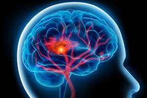 الکترودهای درون قشری سازگار با بافت مغز طراحی شد/گامی مهم برای توسعه تحقیقات علوم شناختی