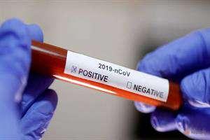 دو هفته دیگر تستهای بالینی داروی کرونا مشخص میشود