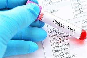 کیت تشخیص هموگلوبین در ایران برای بیماران دیابتی ساخته شد