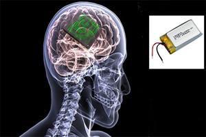 بخشی از یک سیستم ایمپلنت مغزی توسط محققان ایرانی ساخته شد
