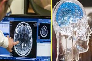 پژوهشگران با ابزارهای دانشبنیان مسیرهای شناخت مغز را سرعت دادند